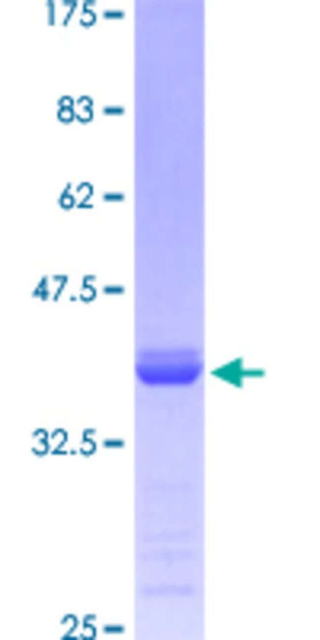 Abnova™Human WDR36 Partial ORF (NP_644810, 853 a.a. - 951 a.a.) Recombinant Protein with GST-tag at N-terminal 10μg Abnova™Human WDR36 Partial ORF (NP_644810, 853 a.a. - 951 a.a.) Recombinant Protein with GST-tag at N-terminal