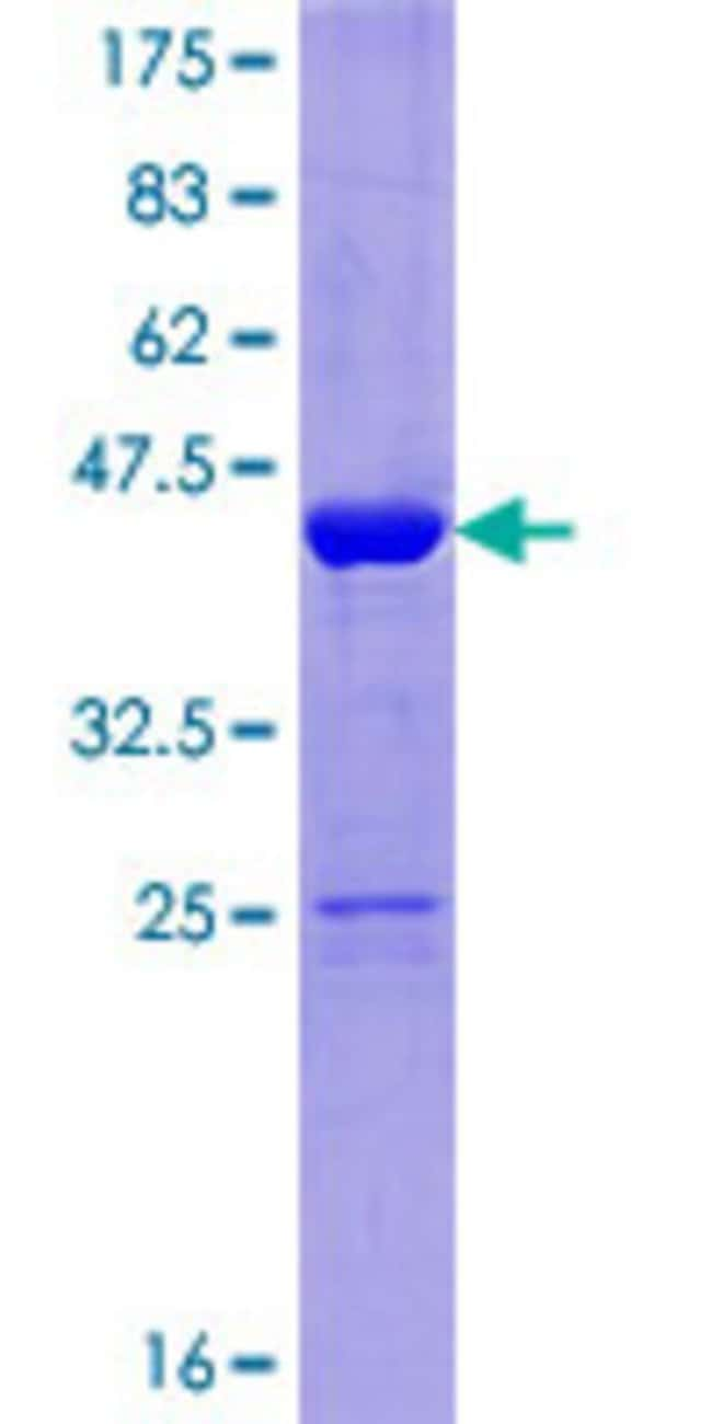 Abnova™Human NUDCD2 Full-length ORF (NP_660309.1, 1 a.a. - 157 a.a.) Recombinant Protein with GST-tag at N-terminal 25μg Abnova™Human NUDCD2 Full-length ORF (NP_660309.1, 1 a.a. - 157 a.a.) Recombinant Protein with GST-tag at N-terminal
