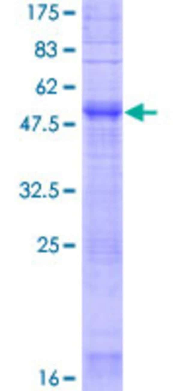 Abnova™Human OR2F2 Full-length ORF (NP_001004685.1, 1 a.a. - 317 a.a.) Recombinant Protein with GST-tag at N-terminal 25μg Abnova™Human OR2F2 Full-length ORF (NP_001004685.1, 1 a.a. - 317 a.a.) Recombinant Protein with GST-tag at N-terminal