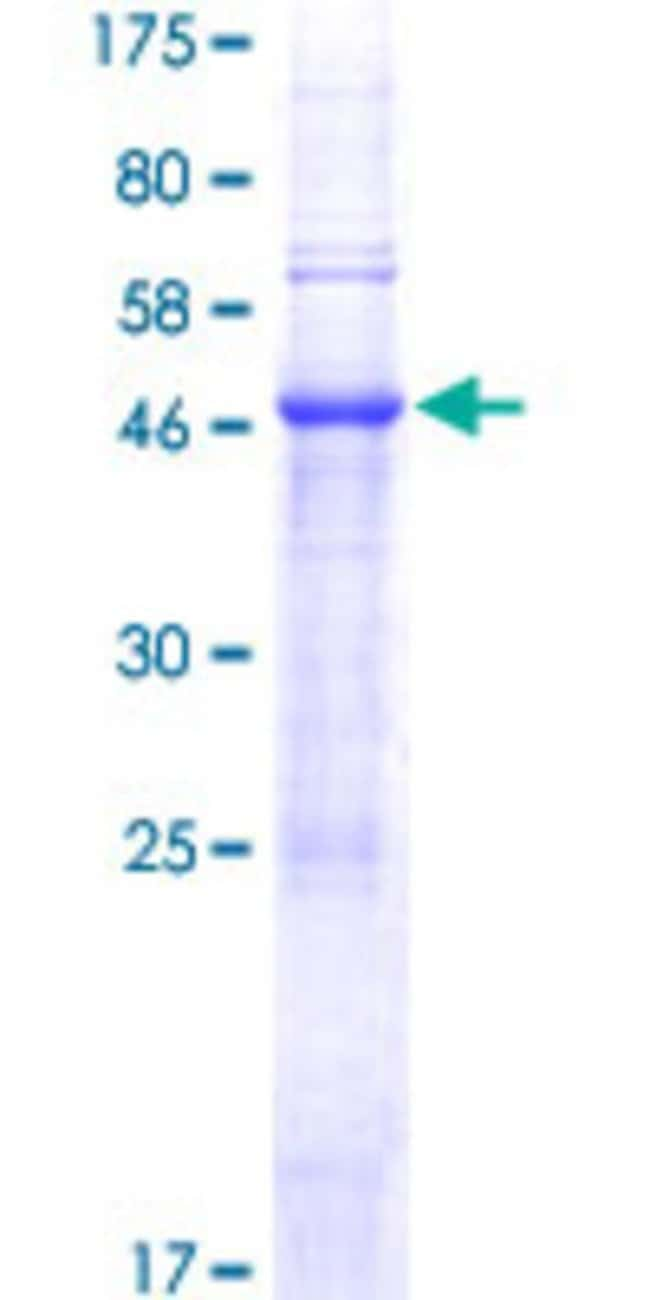 Abnova™ Human TRY1 Full-length ORF (NP_001001317.1, 1 a.a. - 241 a.a.) Recombinant Protein with GST-tag at N-terminal 25μg Abnova™ Human TRY1 Full-length ORF (NP_001001317.1, 1 a.a. - 241 a.a.) Recombinant Protein with GST-tag at N-terminal
