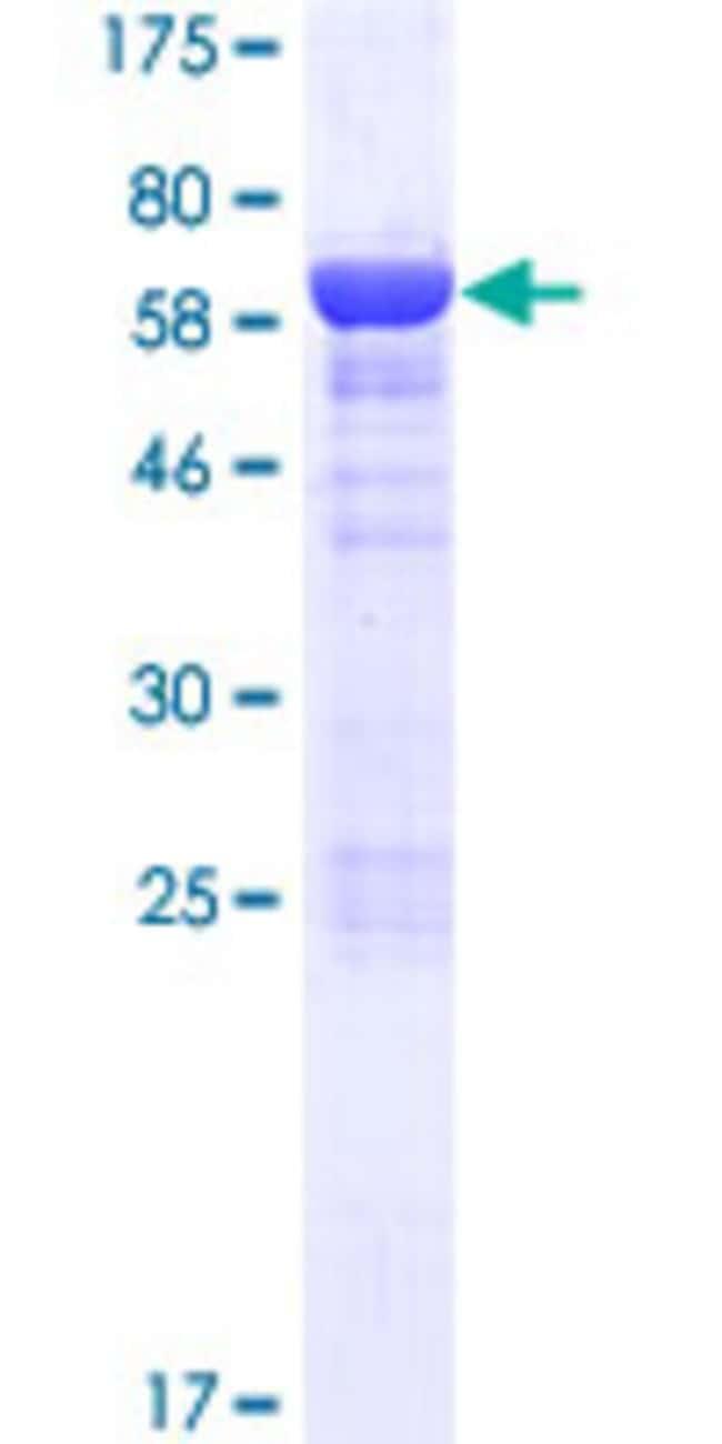 AbnovaHuman ASZ1 Full-length ORF (AAH34963.1, 1 a.a. - 393 a.a.) Recombinant