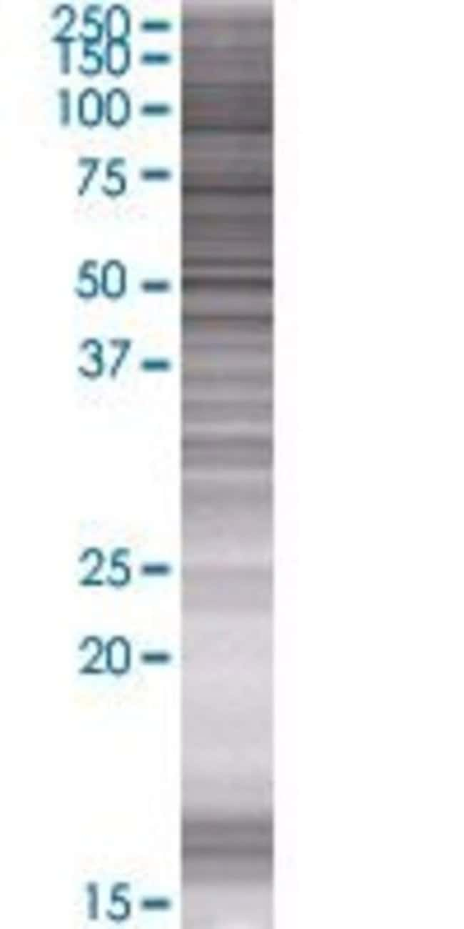 AbnovaASZ1 293T Cell Transient Overexpression Lysate (Denatured) 100μL:Protein