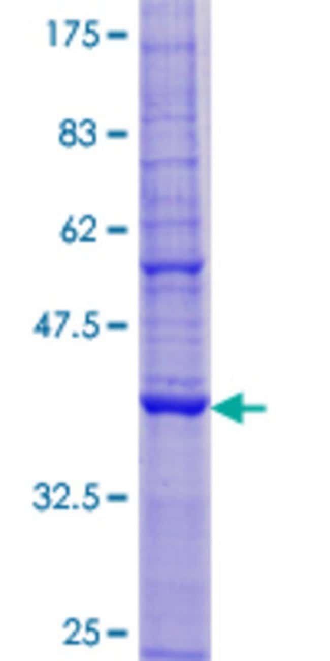 Abnova™Human TMEM68 Full-length ORF (AAH20835.1, 1 a.a. - 135 a.a.) Recombinant Protein with GST-tag at N-terminal 25μg Abnova™Human TMEM68 Full-length ORF (AAH20835.1, 1 a.a. - 135 a.a.) Recombinant Protein with GST-tag at N-terminal