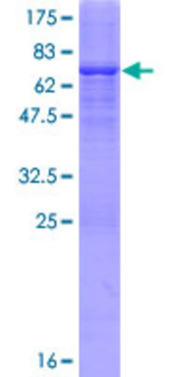 Abnova™Human ADHFE1 Full-length ORF (NP_653251.1, 1 a.a. - 419 a.a.) Recombinant Protein with GST-tag at N-terminal 10μg Abnova™Human ADHFE1 Full-length ORF (NP_653251.1, 1 a.a. - 419 a.a.) Recombinant Protein with GST-tag at N-terminal