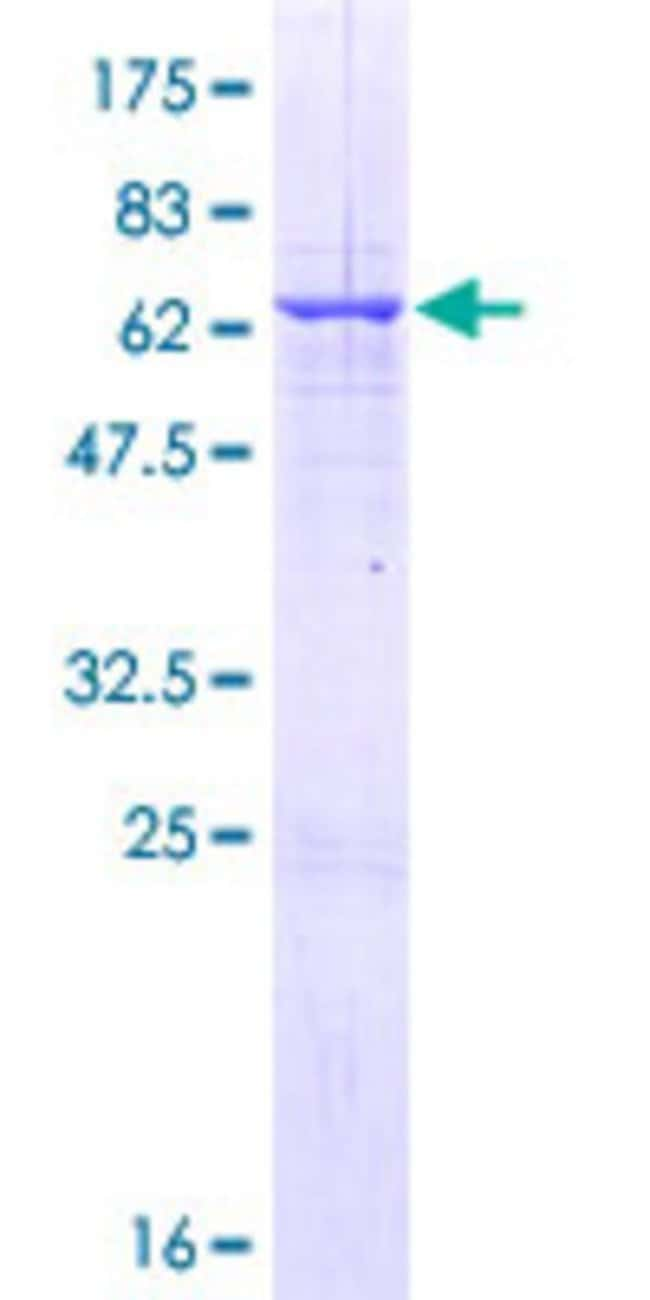Abnova™Human RALYL Full-length ORF (AAH31090.1, 1 a.a. - 291 a.a.) Recombinant Protein with GST-tag at N-terminal 25μg Abnova™Human RALYL Full-length ORF (AAH31090.1, 1 a.a. - 291 a.a.) Recombinant Protein with GST-tag at N-terminal