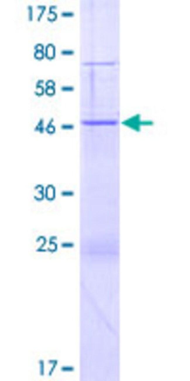 Abnova Human HGSNAT Full-length ORF (AAH12452.1, 1 a.a. - 206 a.a.) Recombinant