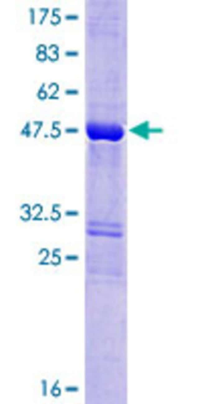 Abnova™Human SPANX-N3 Full-length ORF (NP_001009609.1, 1 a.a. - 141 a.a.) Recombinant Protein with GST-tag at N-terminal 10μg Abnova™Human SPANX-N3 Full-length ORF (NP_001009609.1, 1 a.a. - 141 a.a.) Recombinant Protein with GST-tag at N-terminal