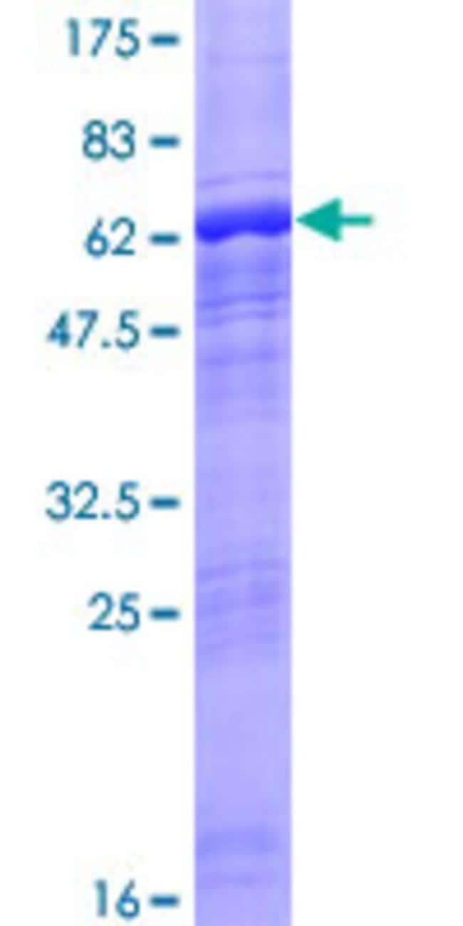 AbnovaHuman ACTRT2 Full-length ORF (NP_536356.3, 1 a.a. - 377 a.a.) Recombinant