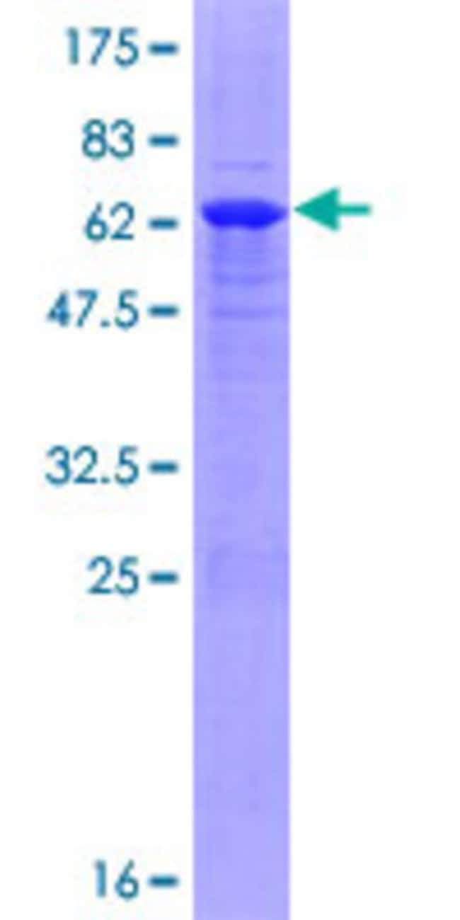 Abnova™Human RNF36 Full-length ORF (NP_542783.2, 1 a.a. - 341 a.a.) Recombinant Protein with GST-tag at N-terminal 10μg Abnova™Human RNF36 Full-length ORF (NP_542783.2, 1 a.a. - 341 a.a.) Recombinant Protein with GST-tag at N-terminal