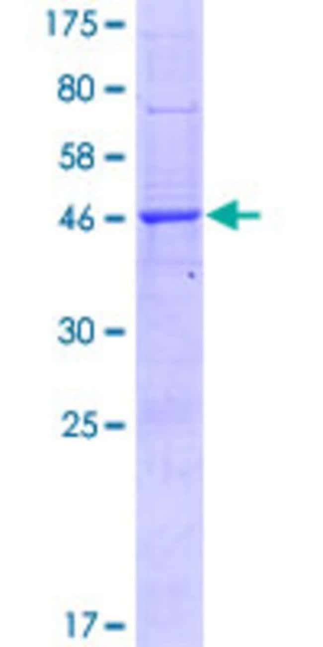 Abnova™Human BRI3BP Full-length ORF (NP_542193.3, 1 a.a. - 251 a.a.) Recombinant Protein with GST-tag at N-terminal 25μg Abnova™Human BRI3BP Full-length ORF (NP_542193.3, 1 a.a. - 251 a.a.) Recombinant Protein with GST-tag at N-terminal