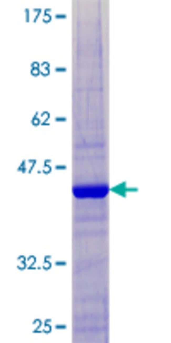 Abnova™Human C20orf79 Full-length ORF (NP_848578.1, 1 a.a. - 156 a.a.) Recombinant Protein with GST-tag at N-terminal 10μg Abnova™Human C20orf79 Full-length ORF (NP_848578.1, 1 a.a. - 156 a.a.) Recombinant Protein with GST-tag at N-terminal