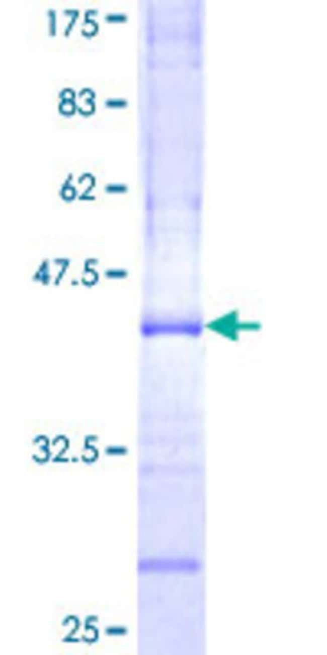 Abnova™Human RAB40A Partial ORF (NP_543155, 139 a.a. - 238 a.a.) Recombinant Protein with GST-tag at N-terminal 25μg Abnova™Human RAB40A Partial ORF (NP_543155, 139 a.a. - 238 a.a.) Recombinant Protein with GST-tag at N-terminal