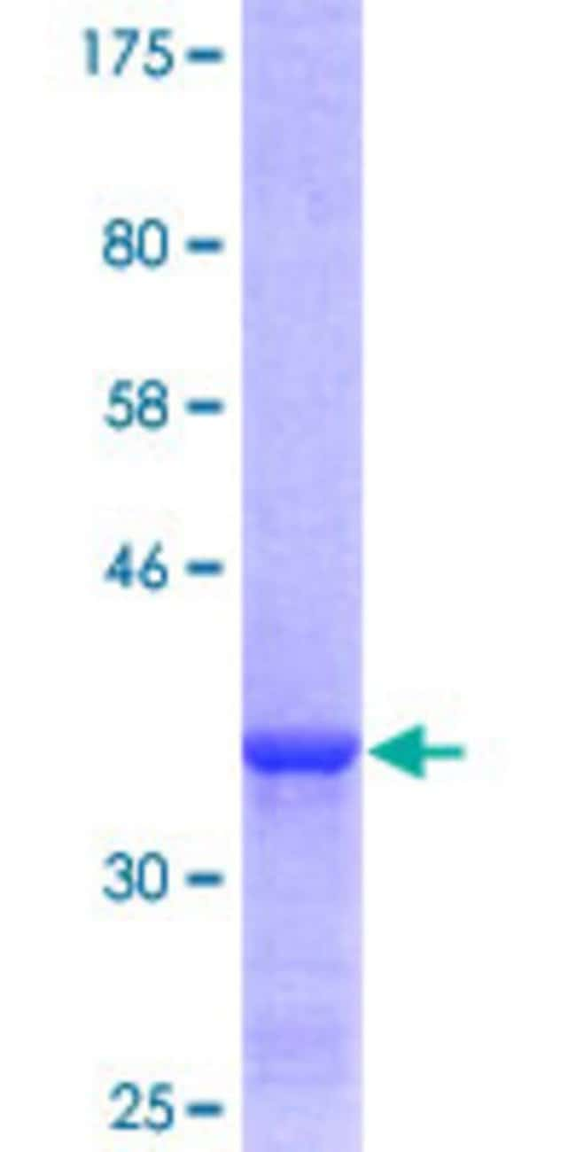 Abnova™Human PSMA8 Partial ORF (NP_653263, 143 a.a. - 242 a.a.) Recombinant Protein with GST-tag at N-terminal 10μg Abnova™Human PSMA8 Partial ORF (NP_653263, 143 a.a. - 242 a.a.) Recombinant Protein with GST-tag at N-terminal