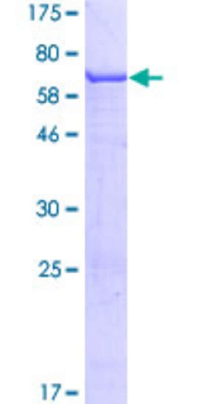 AbnovaHuman AMDHD1 Full-length ORF (NP_689648.1, 1 a.a. - 426 a.a.) Recombinant