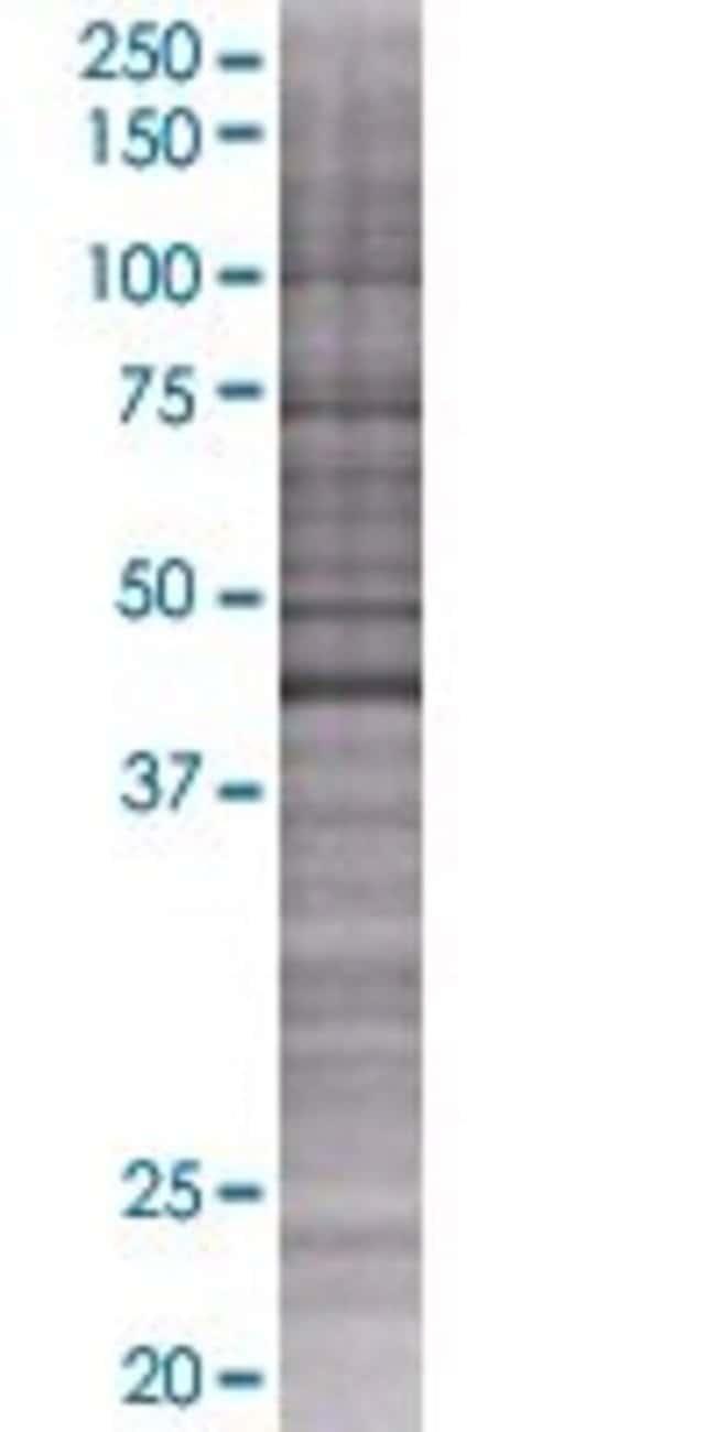 AbnovaAMDHD1 293T Cell Transient Overexpression Lysate (Denatured) 100μL:Protein