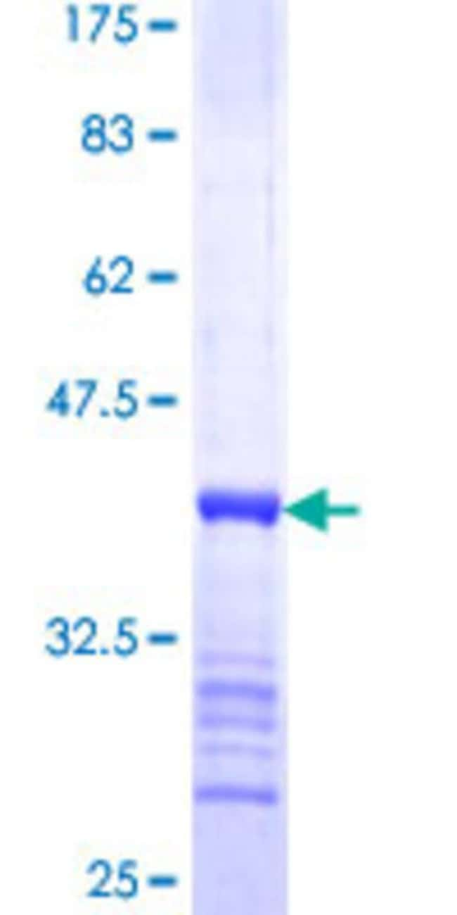 Abnova Human MIPOL1 Partial ORF (NP_620059, 321 a.a. - 423 a.a.) Recombinant