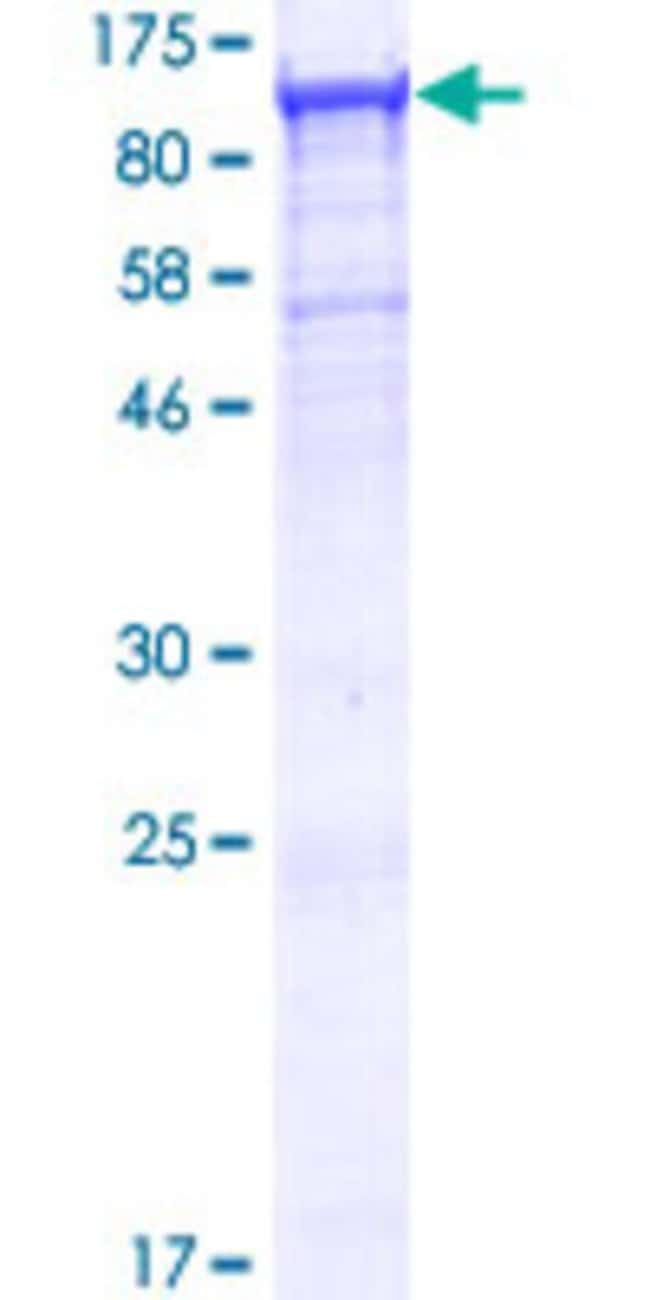 Abnova™Human TTC7B Full-length ORF (NP_001010854.1, 1 a.a. - 843 a.a.) Recombinant Protein with GST-tag at N-terminal 10μg Abnova™Human TTC7B Full-length ORF (NP_001010854.1, 1 a.a. - 843 a.a.) Recombinant Protein with GST-tag at N-terminal