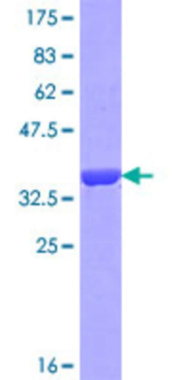 Abnova™Human OTOA Partial ORF (NP_653273.3, 27 a.a. - 124 a.a.) Recombinant Protein with GST-tag at N-terminal 25μg Abnova™Human OTOA Partial ORF (NP_653273.3, 27 a.a. - 124 a.a.) Recombinant Protein with GST-tag at N-terminal