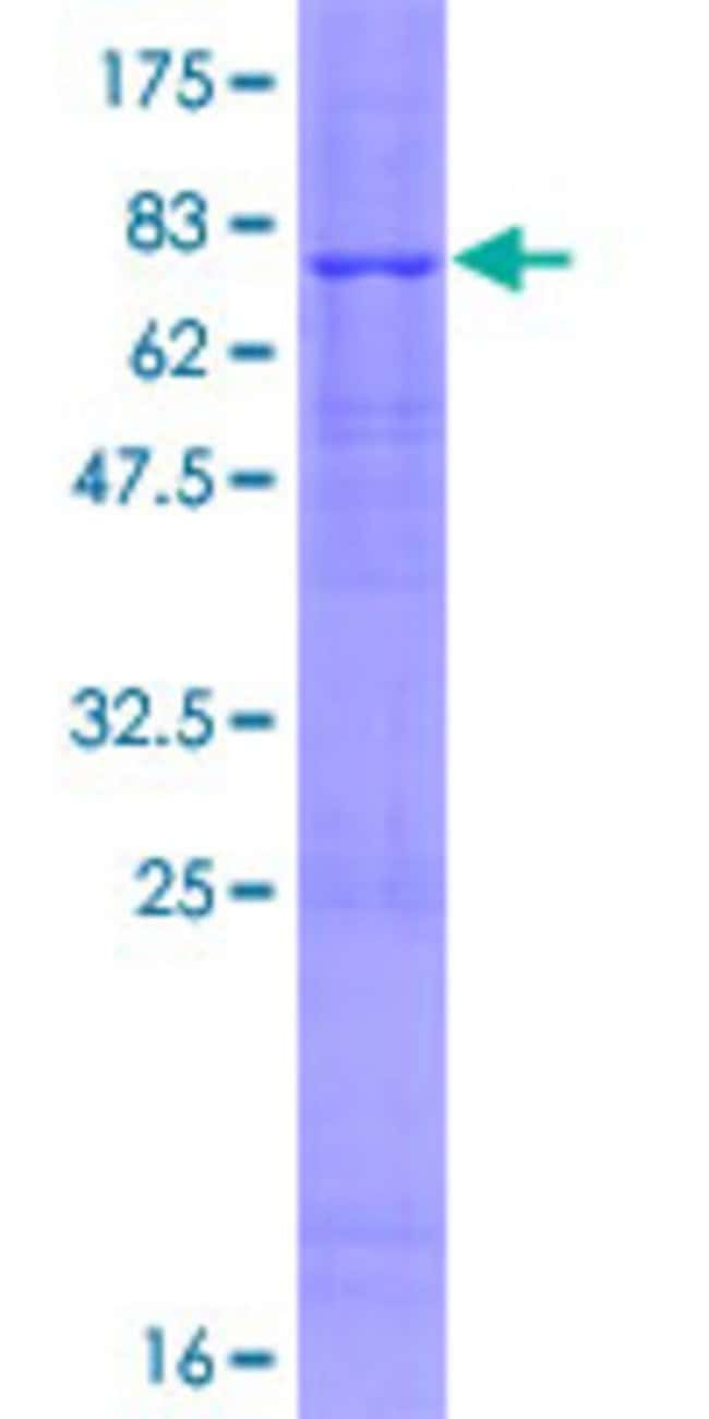 Abnova™Human FBXL16 Full-length ORF (NP_699181.1, 1 a.a. - 479 a.a.) Recombinant Protein with GST-tag at N-terminal 10μg Abnova™Human FBXL16 Full-length ORF (NP_699181.1, 1 a.a. - 479 a.a.) Recombinant Protein with GST-tag at N-terminal