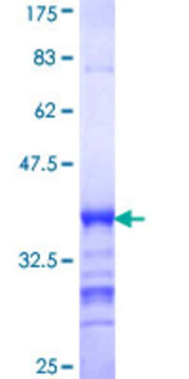 Abnova™Human C17orf38 Partial ORF (NP_001010855, 661 a.a. - 754 a.a.) Recombinant Protein with GST-tag at N-terminal 10μg Abnova™Human C17orf38 Partial ORF (NP_001010855, 661 a.a. - 754 a.a.) Recombinant Protein with GST-tag at N-terminal