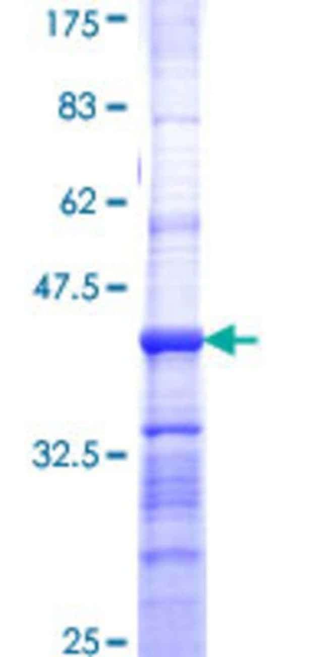 Abnova™Human C18orf23 Partial ORF (NP_689683, 122 a.a. - 220 a.a.) Recombinant Protein with GST-tag at N-terminal 25μg Abnova™Human C18orf23 Partial ORF (NP_689683, 122 a.a. - 220 a.a.) Recombinant Protein with GST-tag at N-terminal