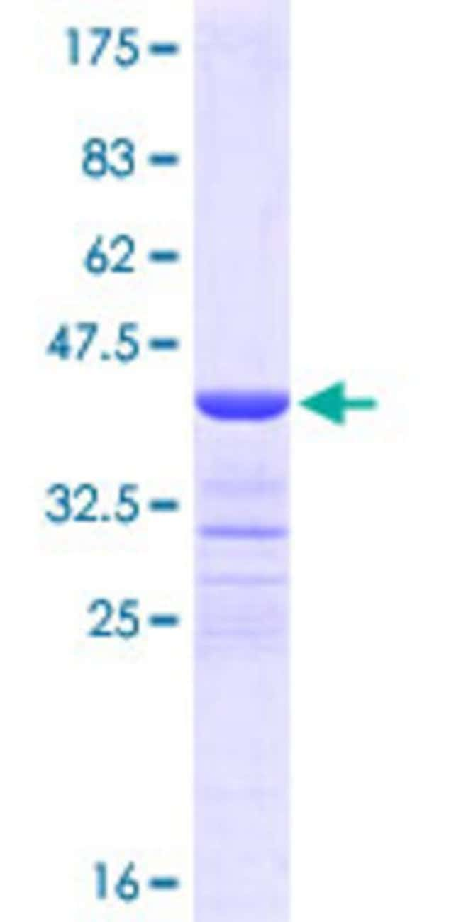Abnova™ Human DSG4 Partial ORF (NP_817123, 531 a.a. - 630 a.a.) Recombinant Protein with GST-tag at N-terminal 25μg Abnova™ Human DSG4 Partial ORF (NP_817123, 531 a.a. - 630 a.a.) Recombinant Protein with GST-tag at N-terminal
