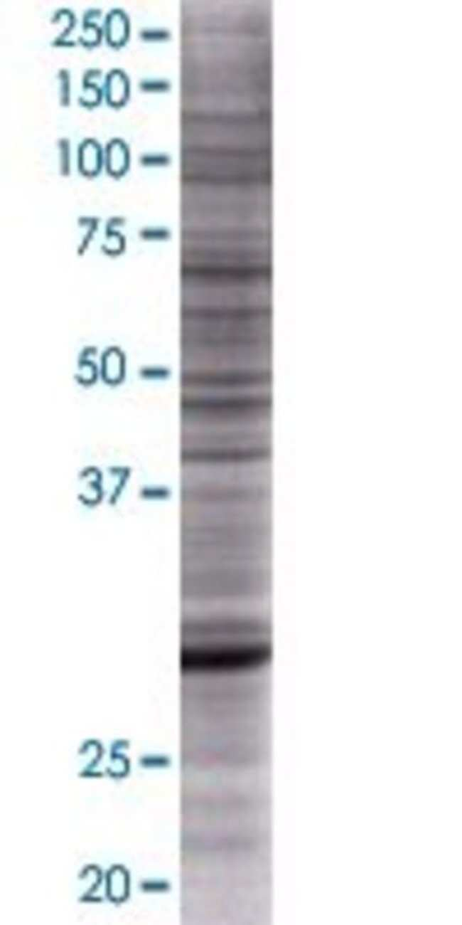 AbnovaANKRD29 293T Cell Transient Overexpression Lysate (Denatured) 100μL:Protein