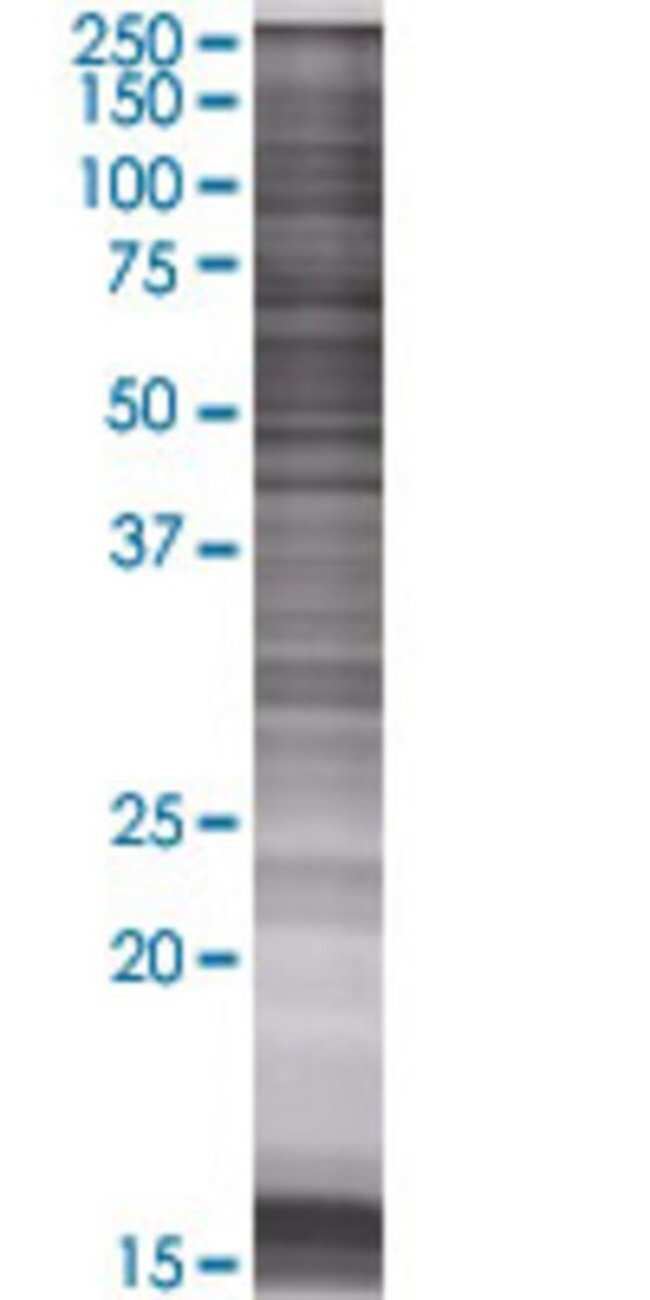 AbnovaAPCDD1 293T Cell Transient Overexpression Lysate (Denatured) 100μL:Protein