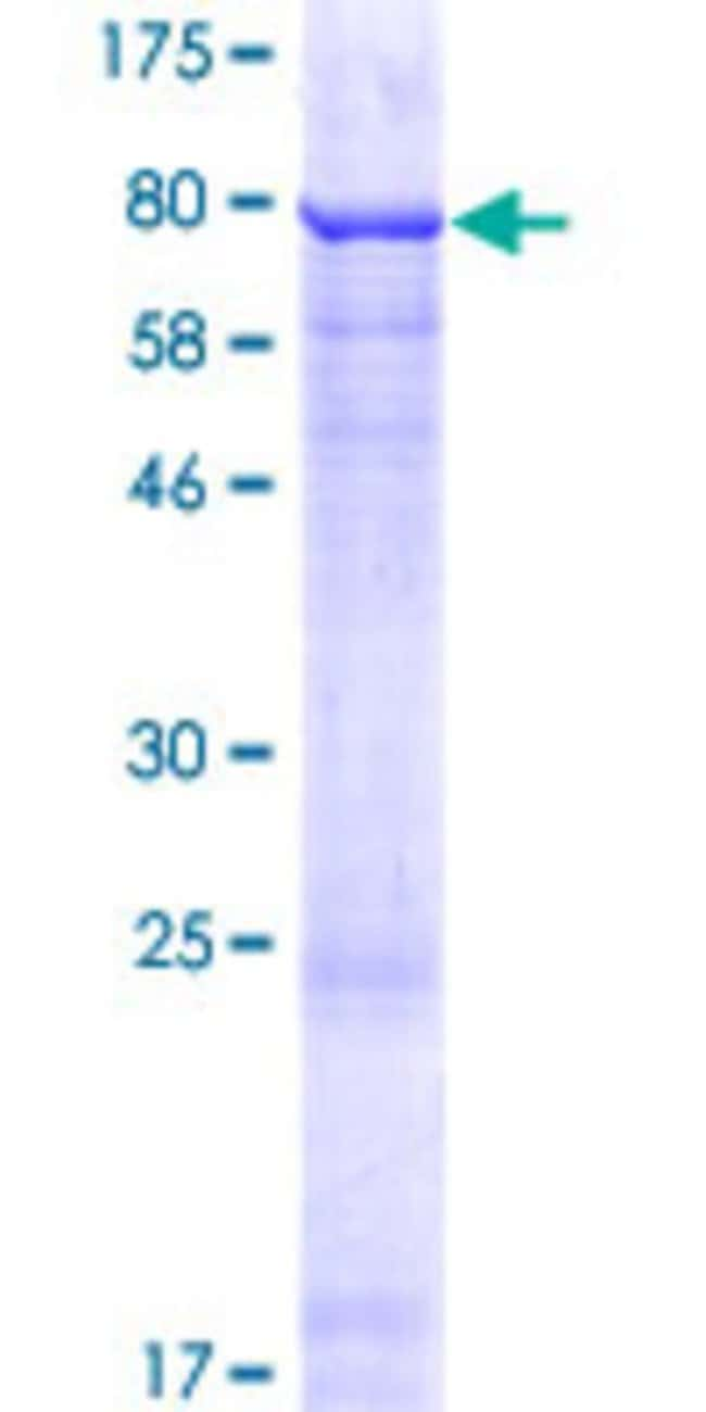 Abnova™Human ZNF548 Full-length ORF (NP_690873.1, 1 a.a. - 533 a.a.) Recombinant Protein with GST-tag at N-terminal 25μg Abnova™Human ZNF548 Full-length ORF (NP_690873.1, 1 a.a. - 533 a.a.) Recombinant Protein with GST-tag at N-terminal