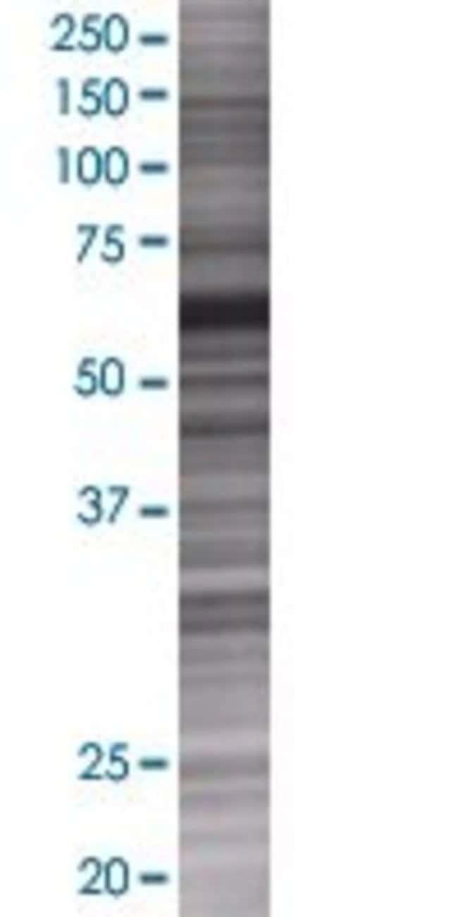 Abnova KLC3 293T Cell Transient Overexpression Lysate (Denatured) 100µL:Life