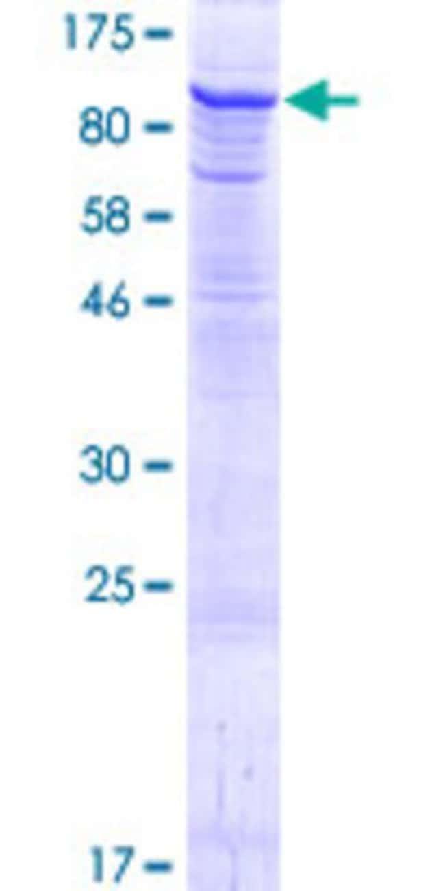 Abnova Human HIPK4 Full-length ORF (NP_653286.2, 1 a.a. - 616 a.a.) Recombinant