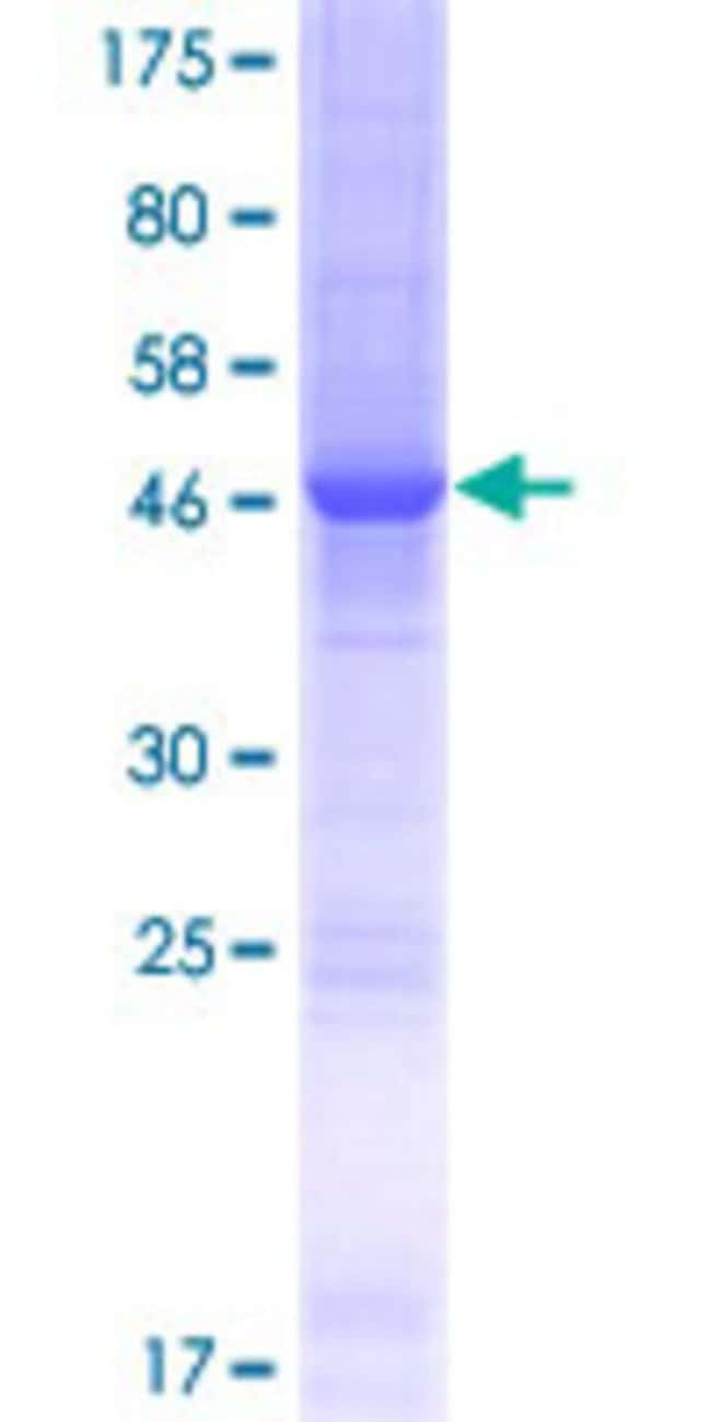 Abnova™Human SPC24 Full-length ORF (NP_872319.1, 1 a.a. - 197 a.a.) Recombinant Protein with GST-tag at N-terminal 25μg Abnova™Human SPC24 Full-length ORF (NP_872319.1, 1 a.a. - 197 a.a.) Recombinant Protein with GST-tag at N-terminal