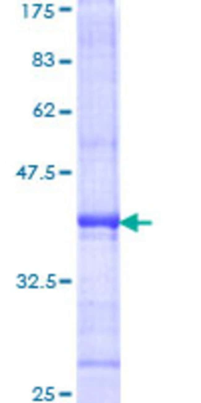 Abnova™ Human TICAM1 Partial ORF (-, 1 a.a. - 110 a.a.) Recombinant Protein with GST-tag at N-terminal 25μg Abnova™ Human TICAM1 Partial ORF (-, 1 a.a. - 110 a.a.) Recombinant Protein with GST-tag at N-terminal
