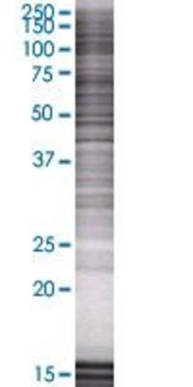 Abnova ZNF558 293T Cell Transient Overexpression Lysate (Denatured) 100µL:Life