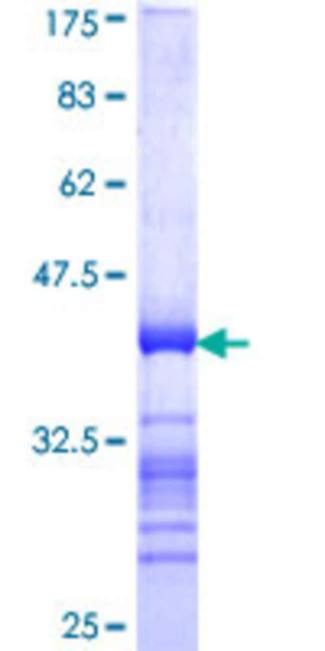 Abnova™Human CREB3L4 Partial ORF (NP_570968, 1 a.a. - 110 a.a.) Recombinant Protein with GST-tag at N-terminal 10μg Abnova™Human CREB3L4 Partial ORF (NP_570968, 1 a.a. - 110 a.a.) Recombinant Protein with GST-tag at N-terminal