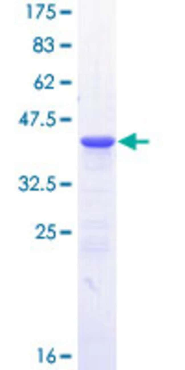 Abnova™Human IL23R Partial ORF (NP_653302, 553 a.a. - 628 a.a.) Recombinant Protein with GST-tag at N-terminal 10μg Abnova™Human IL23R Partial ORF (NP_653302, 553 a.a. - 628 a.a.) Recombinant Protein with GST-tag at N-terminal