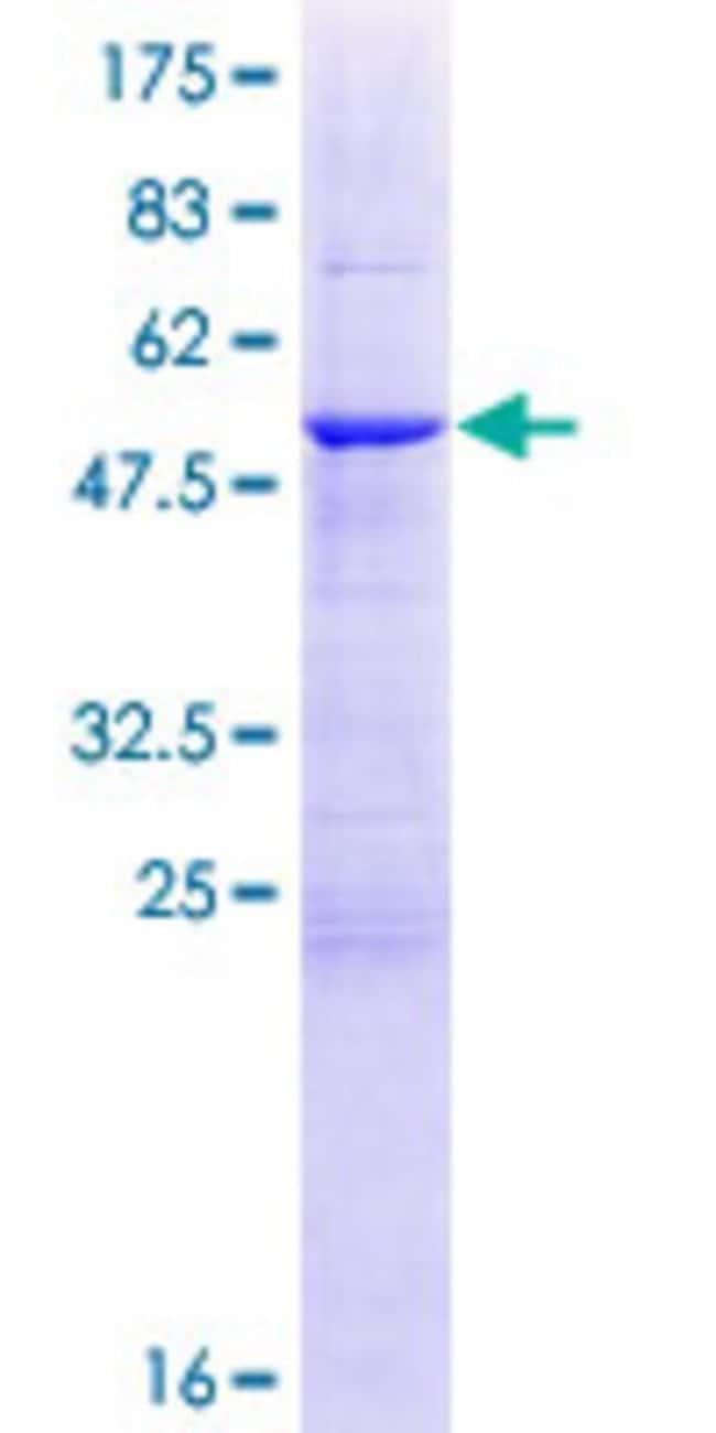 Abnova Human HSCB Full-length ORF (NP_741999.3, 1 a.a. - 235 a.a.) Recombinant