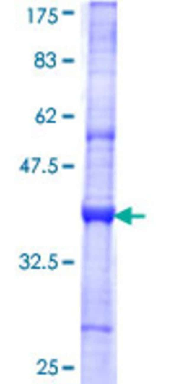 Abnova™Human TTL Partial ORF (NP_714923, 279 a.a. - 377 a.a.) Recombinant Protein with GST-tag at N-terminal 10μg Abnova™Human TTL Partial ORF (NP_714923, 279 a.a. - 377 a.a.) Recombinant Protein with GST-tag at N-terminal