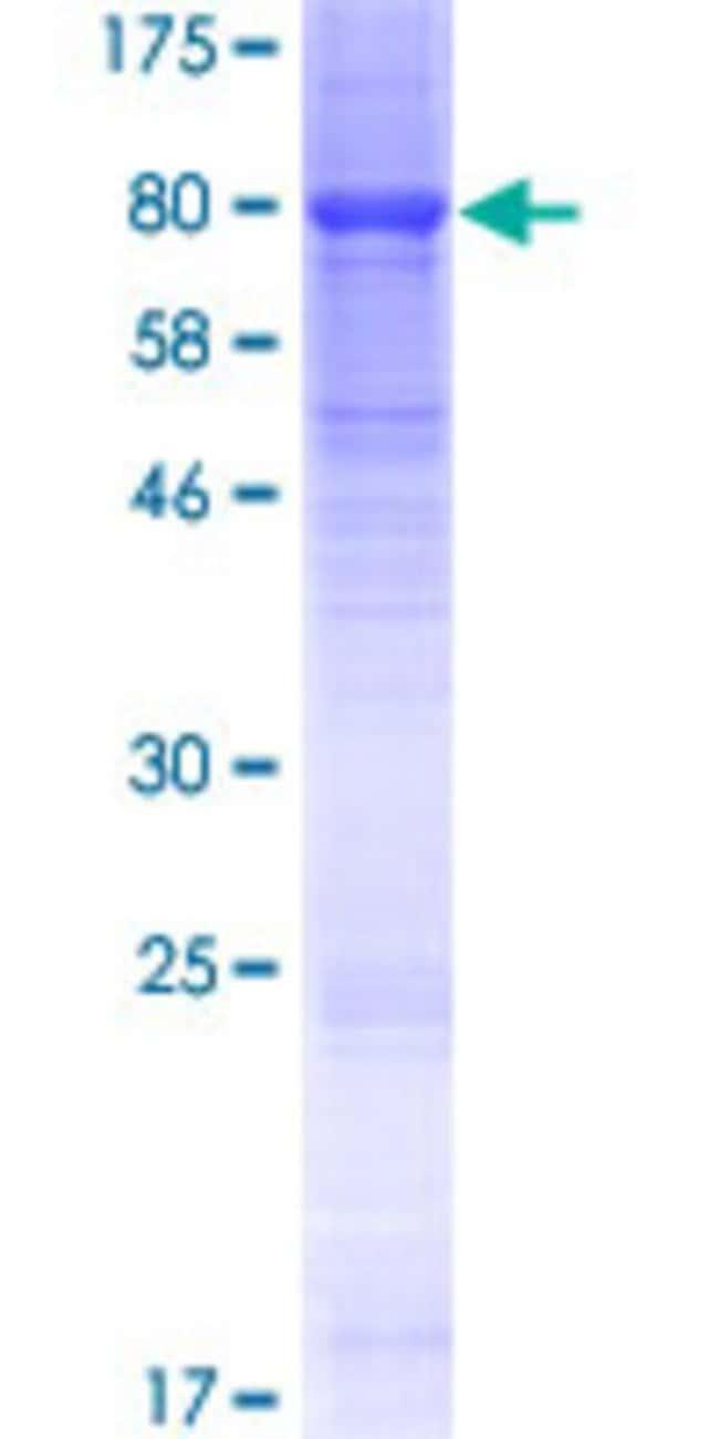 Abnova Human KLHL23 Full-length ORF (NP_653312.2, 1 a.a. - 558 a.a.) Recombinant