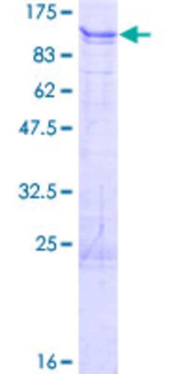 AbnovaHuman ALS2CR11 Full-length ORF (AAH30659.1, 1 a.a. - 623 a.a.) Recombinant