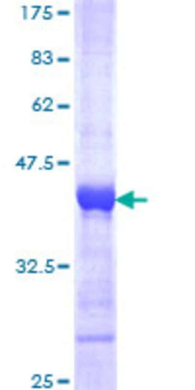 Abnova™ Human DTX3L Partial ORF (NP_612144, 3 a.a. - 110 a.a.) Recombinant Protein with GST-tag at N-terminal 25μg Abnova™ Human DTX3L Partial ORF (NP_612144, 3 a.a. - 110 a.a.) Recombinant Protein with GST-tag at N-terminal