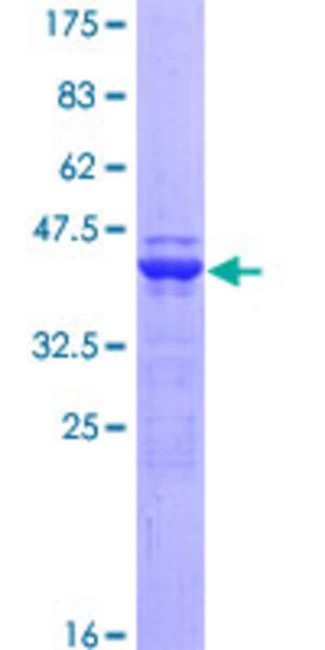 Abnova™Human BTLA Partial ORF (NP_861445, 190 a.a. - 289 a.a.) Recombinant Protein with GST-tag at N-terminal 10μg Abnova™Human BTLA Partial ORF (NP_861445, 190 a.a. - 289 a.a.) Recombinant Protein with GST-tag at N-terminal