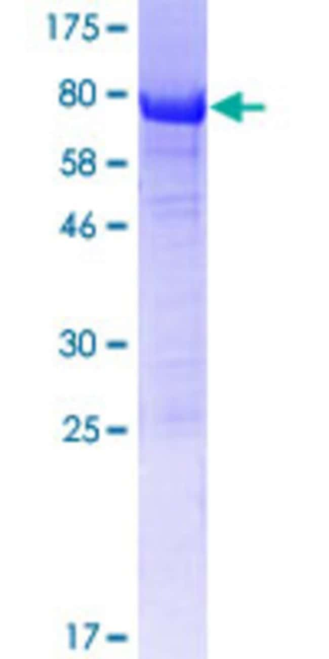 Abnova™Human SH3D19 Full-length ORF (AAH85613.1, 1 a.a. - 420 a.a.) Recombinant Protein with GST-tag at N-terminal 25μg Abnova™Human SH3D19 Full-length ORF (AAH85613.1, 1 a.a. - 420 a.a.) Recombinant Protein with GST-tag at N-terminal