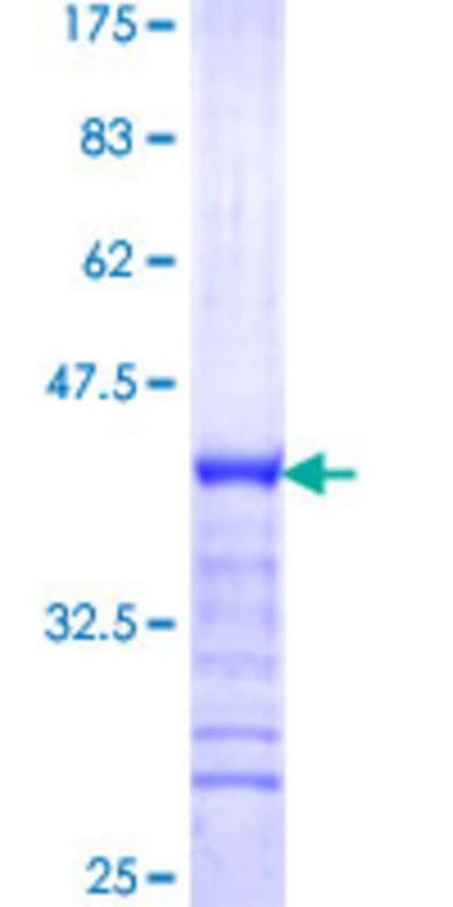 Abnova Human NFXL1 Partial ORF (NP_694540, 634 a.a. - 733 a.a.) Recombinant