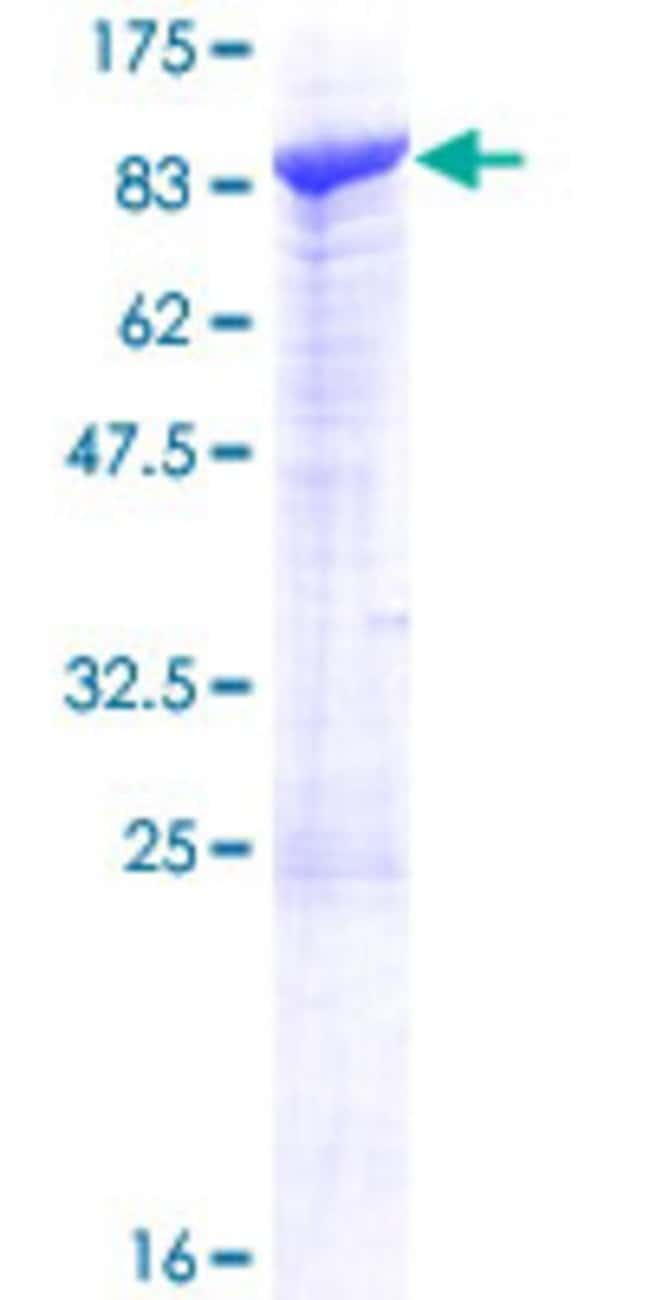 Abnova™Human SCFD2 Full-length ORF (NP_689753.2, 1 a.a. - 684 a.a.) Recombinant Protein with GST-tag at N-terminal 25μg Abnova™Human SCFD2 Full-length ORF (NP_689753.2, 1 a.a. - 684 a.a.) Recombinant Protein with GST-tag at N-terminal