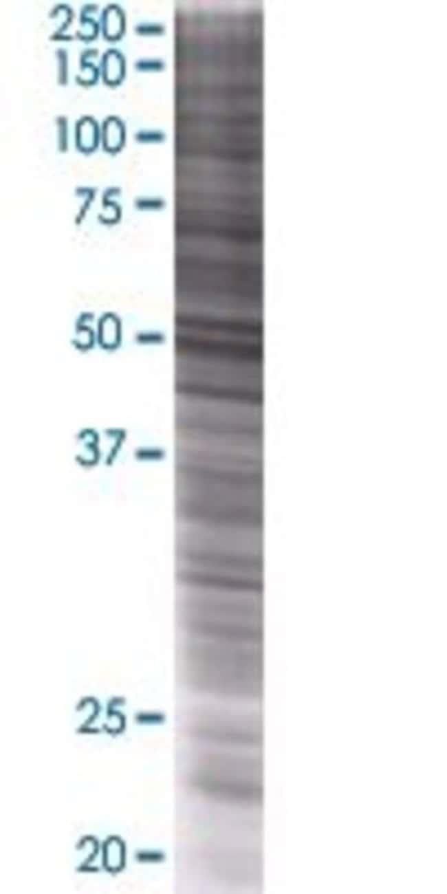 Abnova RASGEF1B 293T Cell Transient Overexpression Lysate (Denatured) (T01)