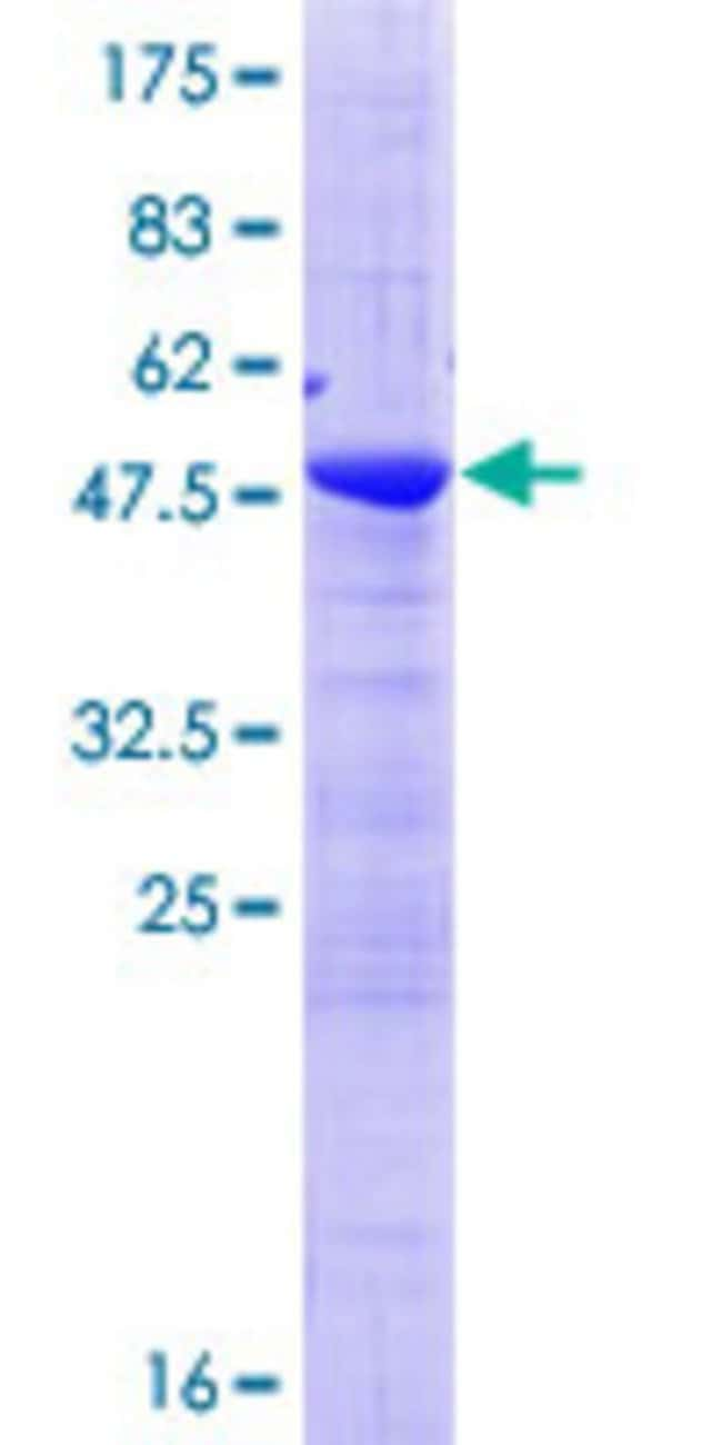 Abnova™Human ZMAT2 Full-length ORF (NP_653324.1, 1 a.a. - 199 a.a.) Recombinant Protein with GST-tag at N-terminal 25μg Abnova™Human ZMAT2 Full-length ORF (NP_653324.1, 1 a.a. - 199 a.a.) Recombinant Protein with GST-tag at N-terminal
