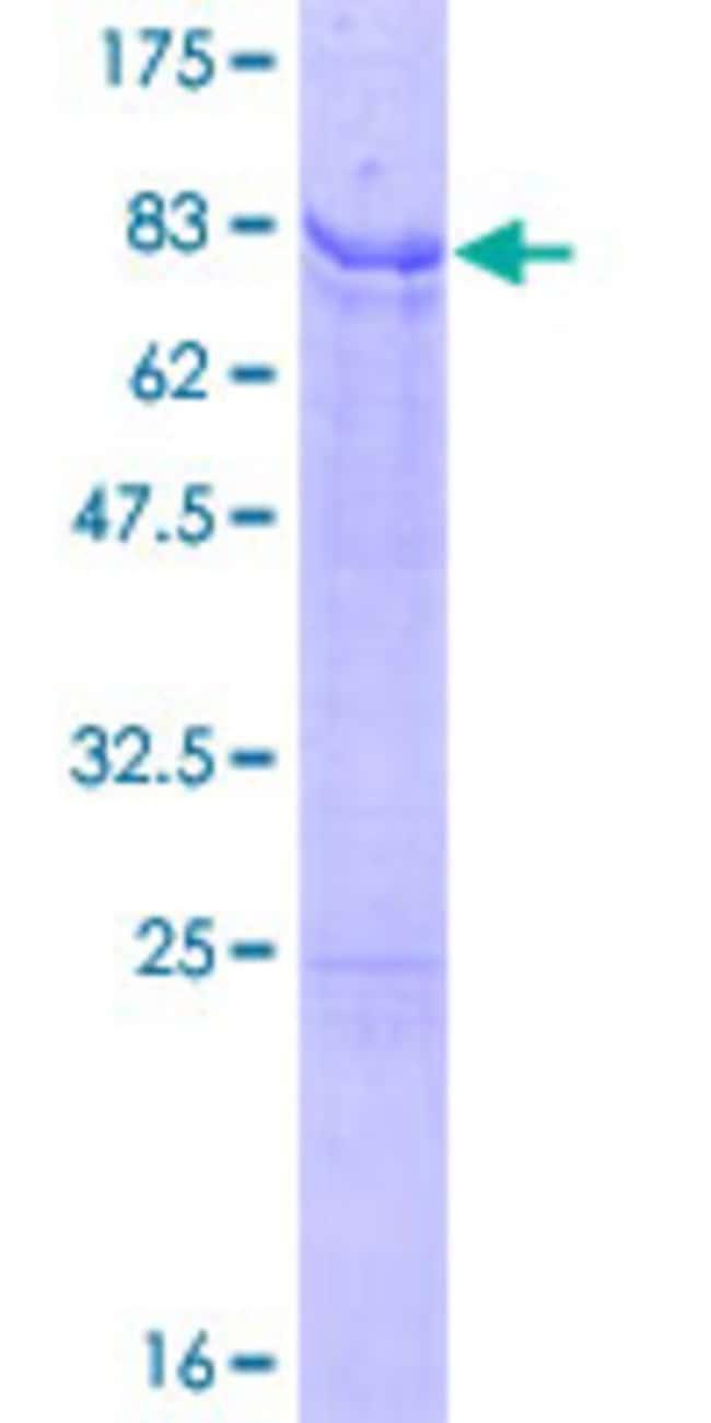 Abnova Human IRX2 Full-length ORF (NP_150366.1, 1 a.a. - 471 a.a.) Recombinant