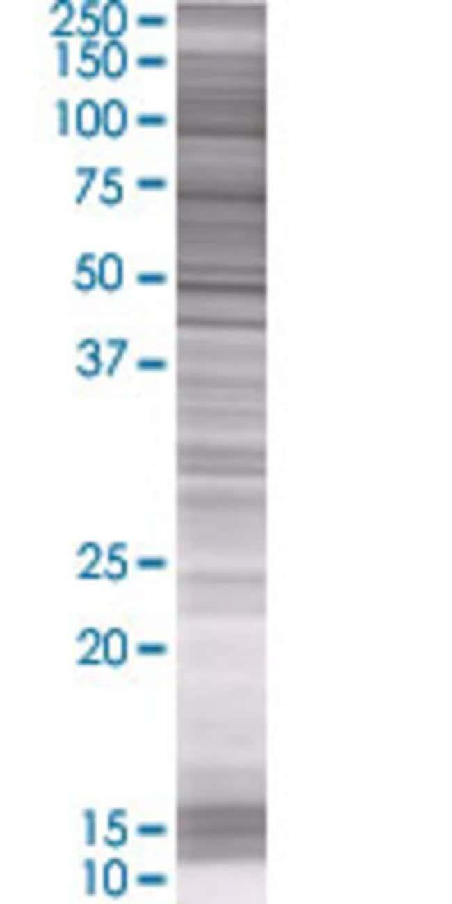 AbnovaARSK 293T Cell Transient Overexpression Lysate (Denatured) 100μL:Protein