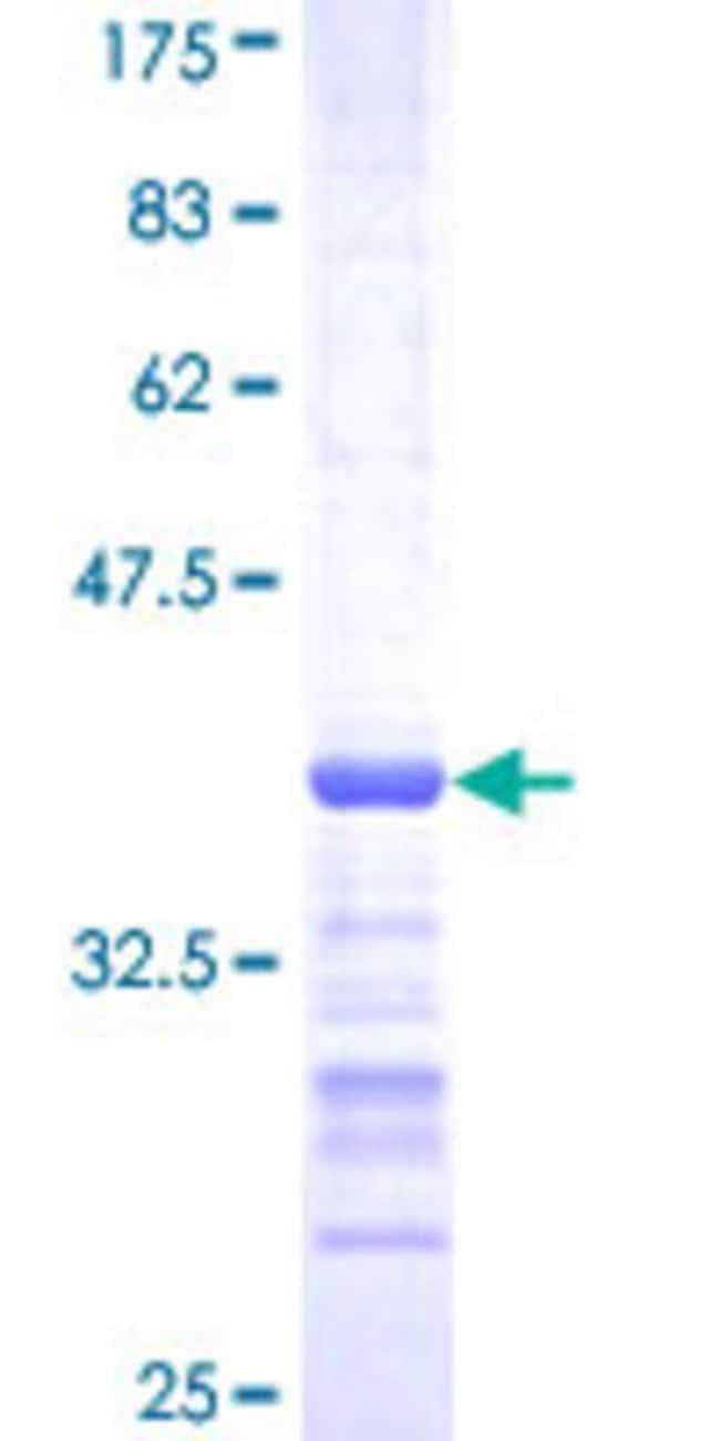 Abnova™Human SH3RF2 Partial ORF (NP_660205, 640 a.a. - 729 a.a.) Recombinant Protein with GST-tag at N-terminal 25μg Abnova™Human SH3RF2 Partial ORF (NP_660205, 640 a.a. - 729 a.a.) Recombinant Protein with GST-tag at N-terminal